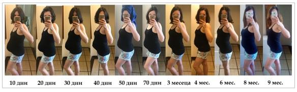 Абдоминална диастаза след раждане